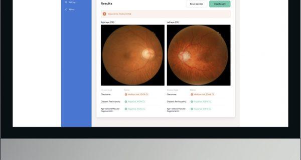 Eyetelligence system AI