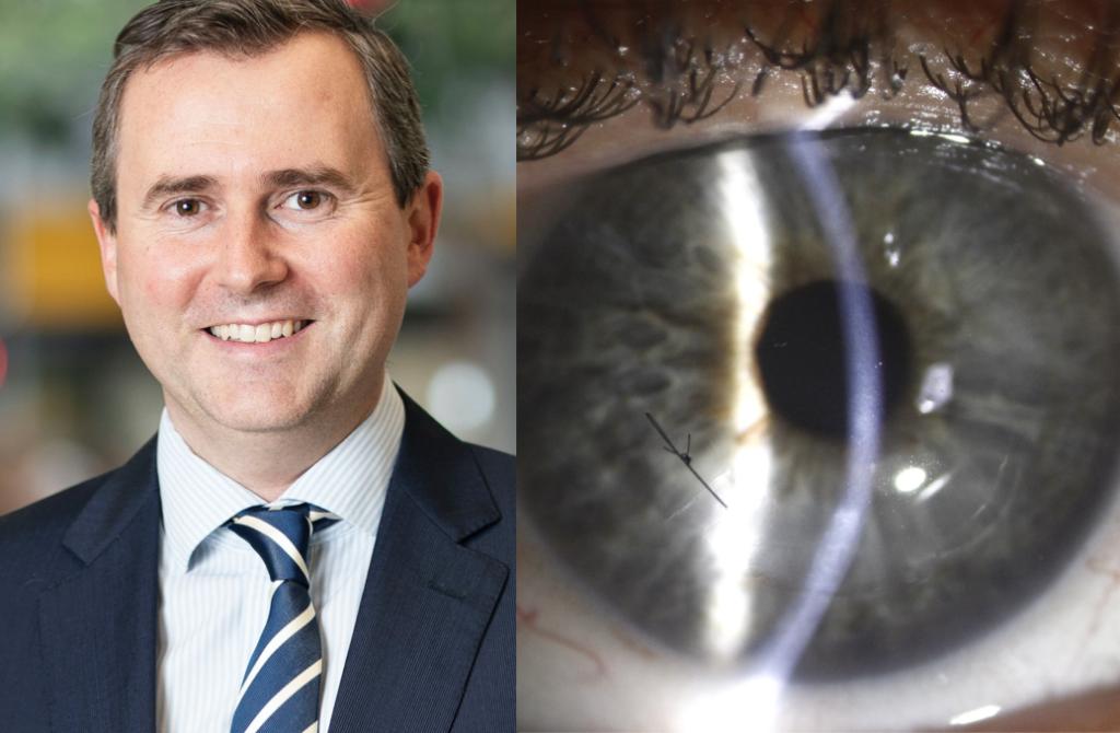 Dr David Gunn QEI CAIRS keratoconus