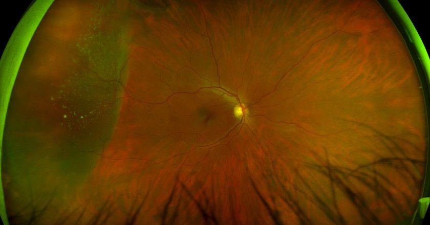 optomap image - retinal detachment