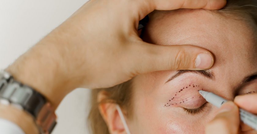 Blepharoplasty,Markup,Close-up,On,The,Face,Before,The,Plastic,Surgery